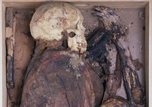 Aikaisin merkki Skistosooma-tartunnasta egyptiläisessä muumiossa.
