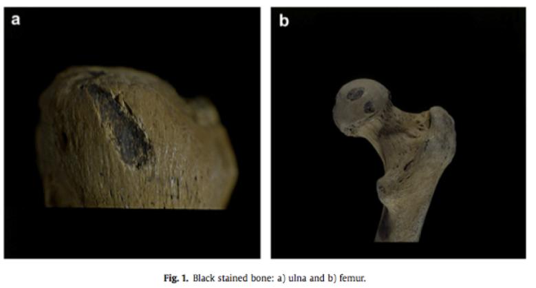 Toisinaan värjäytymisen aiheuttaja joudutaan selvittämään mikroskooppitutkimuksella. Meksikolaisissa luissa olevat mustat laikut sisältävät hautausrituaaleissa käytettyä bitumia. Kuva: Argáez et al. 2011, fig. 1.