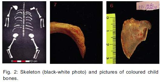 Joskus rautapitoinen punainen mineraali voi aikojen kuluessa muuttua keltaiseksi. Kuvassa keltaiseksi värjäytyneita luita Patagoniasta, Argentiinasta (Darchuk et al. 2009, fig 2.).