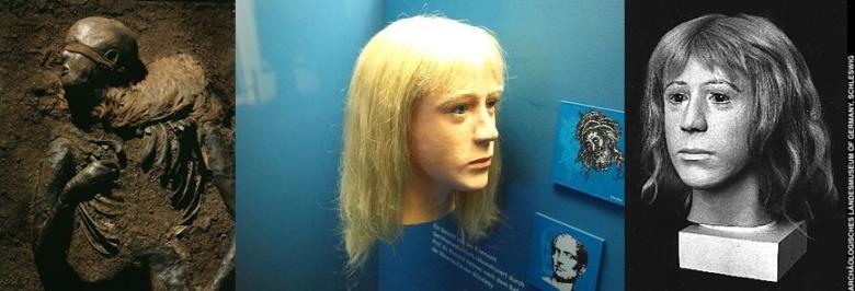 Myös tutkijan ennakko-oletukset vaikuttavat rekonstruktioiden ulkonäköön. Pohjois-Saksasta Windebystä 1952 löytynyttä suoruumista pidettiin pitkään teini-ikäisenä tyttönä, kunnes 2000-luvulla teetetyt DNA-analyysit varmistivat kyseessä olevan pojan. Aikaisemmin luultiin, että vainajan pään toinen puoli on ajeltu kaljuksi. Nykytiedon mukaan pään toinen puoli on kaivaustilanteessa altistunut hapelle toista puolta kauemmin, mikä on johtanut hiusten irtoamiseen. Vainajan silmien edessä on kangassuikale, jonka ennen uskottiin kiedotun tarkoituksella silmille. Nykyisin ollaan sitä mieltä, että kyseessä voi olla hiuspanta, joka on valahtanut silmille vasta kuoleman jälkeen. Kuvan rekonstruktiot ovat ajalta, jolloin vainajaa pidettiin vielä tyttönä.