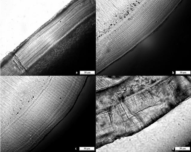 """Hampaan juuren ulkopinnalla olevaan hammassementtiin muodostuu elämän aikana mikroskooppisen pieniä """"vuosirenkaita""""."""