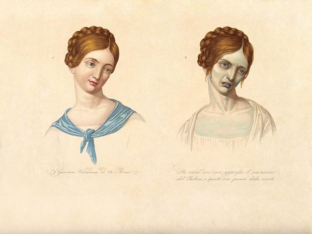 1830-luvulla tehty lääketieteellinen piirros kuvaa koleran uhria ennen sairastumista ja tunnin kuluttua oireiden alkamisen jälkeen.
