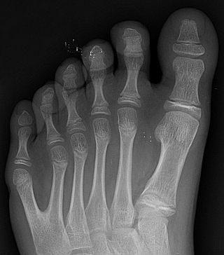 Kuudes varvas röntgenkuvassa (Wikimedia Commons),