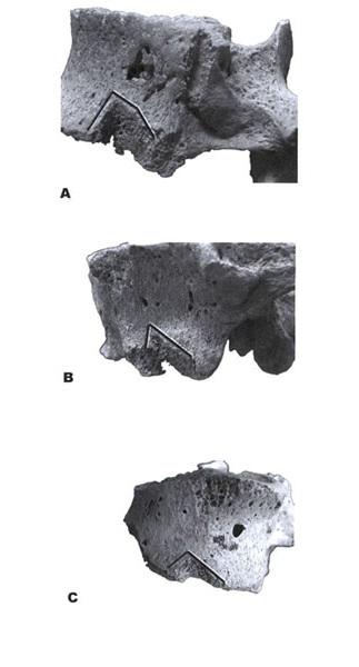 Leikkausjälkiä selkänikamissa. Löydöt Becánista (a), Calakmulista (b) ja Palenquen temppelistä (c). (Tiesler & Cucina 2006: fig. 11).