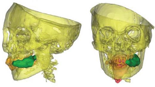 Llullaillacosta löytyneen, Juanitana tunnetun muumion tietokonetomografiakuvassa näkyy, kuinka uhrin suussa on vieläkin kokapensaan lehtiä.