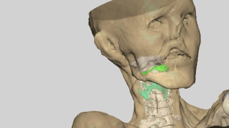 TT-kuva jäämuumio Ötzin äänikanavasta.