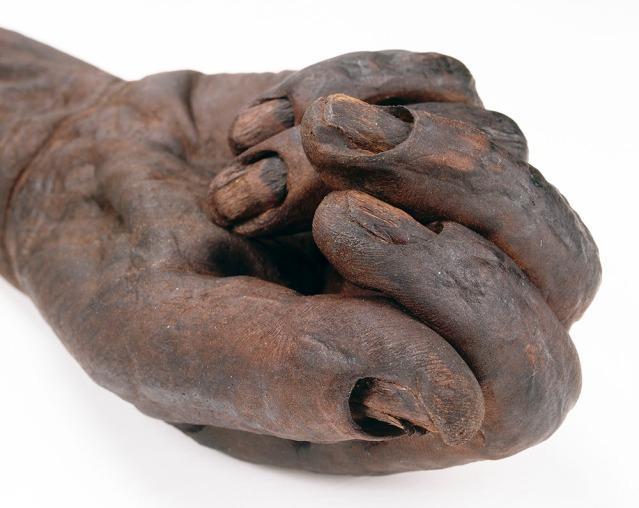 Oldcroghan-miehen käsi lähikuvassa. Kuva: National Museum Ireland.
