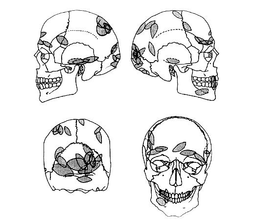 Kooste Ofnetin kalloihin kohdistetusta väkivalllasta. Kuva: Frayer 1997, fig. 7.4.