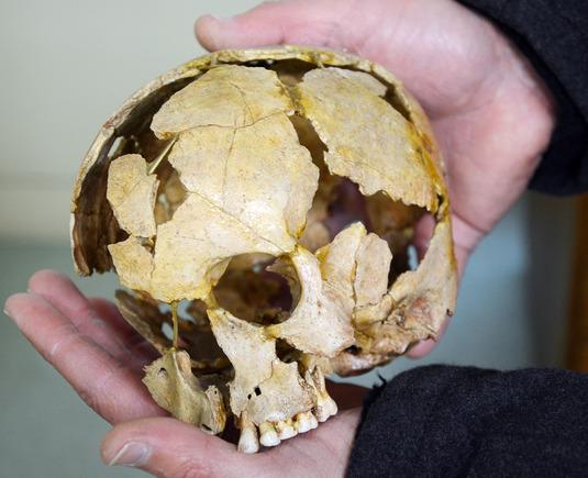Lapsen fragmentaarisena löytynyt kallo Ofnetin luolasta. Kuva: