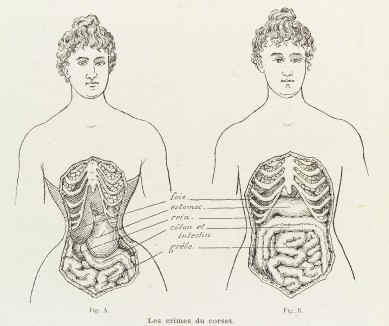 L0038404 Illustrations to denounce the crimes of the corset