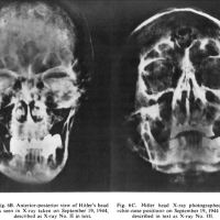 Uusi tutkimus Hitlerin hampaista katkaisee siivet salaliittoteorioilta